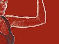 ¡Ven a la sesión sobre el implante anticonceptivo o conéctate en directo!